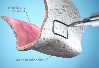 Comblement osseux - Cabinet dentaire du Dr Pascal Guillemin - Gouesnou/Brest Finistère