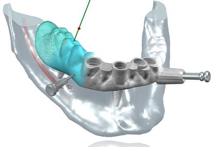 Chirurgie guidée - Cabinet dentaire du Dr Pascal Guillemin - Gouesnou Finistère