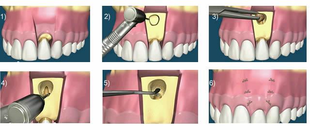 Résection apicale - Cabinet dentaire du Dr Pascal Guillemin - Gouesnou/Brest Finistère
