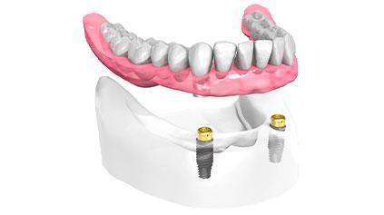 Cabinet dentaire du Dr Pascal Guillemin - Gouesnou Finistère